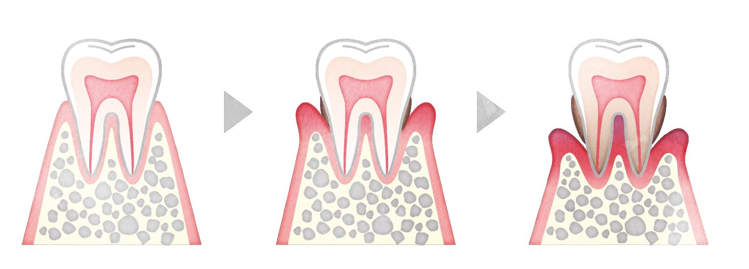歯周病はどのように進行する?