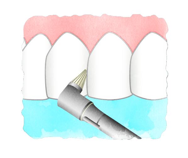当院のお子さまの予防歯科